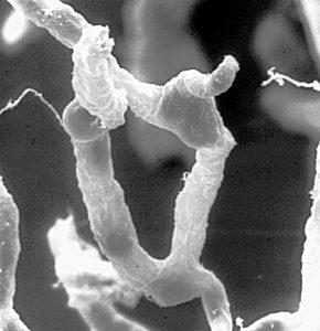 """10.1371 journal.pbio.0050169.g001-O"" by Dan Ferber - http://biology.plosjournals.org/perlserv/?request=slideshow&type=figure&doi=10.1371/journal.pbio.0050169&id=79321. Licensed under CC BY 2.5 via Wikimedia Commons - http://commons.wikimedia.org/wiki/File:10.1371_journal.pbio.0050169.g001-O.jpg#/media/File:10.1371_journal.pbio.0050169.g001-O.jpg"